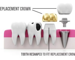 Replacement Crowns